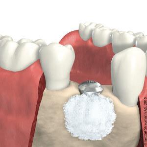 Knochenersatzmaterial